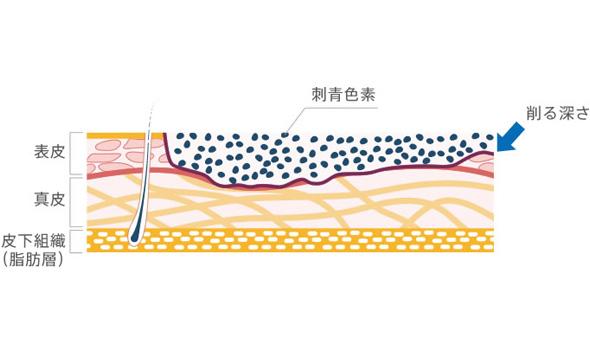 皮膚剥削術断面図
