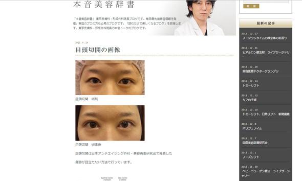 東京皮膚科・形成外科 池田総院長ブログ