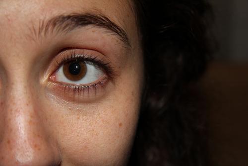 目の下のたるみを解消する方法
