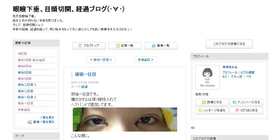 眼瞼下垂、目頭切開、経過ブログ