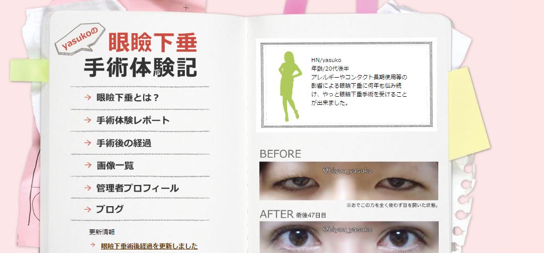 yasukoの眼瞼下垂手術体験記 20代女性