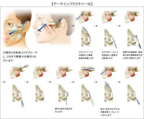 骨切り手術(アーチインフラクチャー法