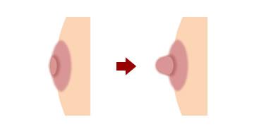 陥没乳頭と違う? 扁平乳頭とは