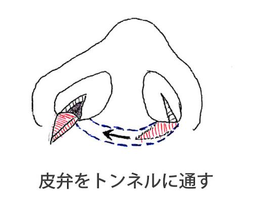 エーラーフラップ法
