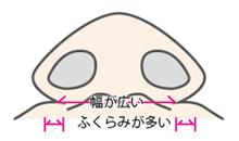エーラーフラップ法はこんな鼻に