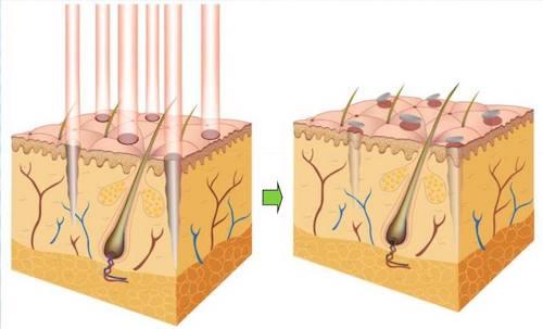 フラクショナルレーザー皮膚への照射断面図