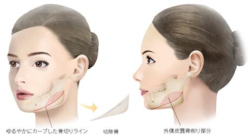 下顎角広範囲骨切り術