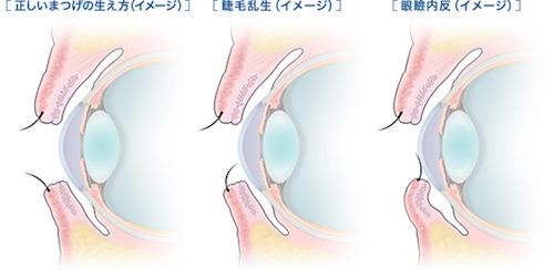 睫毛乱生症と眼瞼内反症